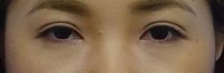 東京中央美容外科 郡山院(郡山下肢静脈瘤クリニック)の目頭切開の症例写真(アフター)