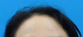 東京中央美容外科 郡山院(郡山下肢静脈瘤クリニック)のFAGA治療の症例写真(ビフォー)