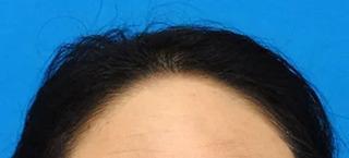 東京中央美容外科 郡山院(郡山下肢静脈瘤クリニック)のFAGA治療の症例写真(アフター)