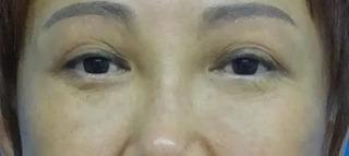 東京中央美容外科 郡山院(郡山下肢静脈瘤クリニック)の目の上のたるみ取りの症例写真(ビフォー)