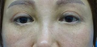 東京中央美容外科 郡山院(郡山下肢静脈瘤クリニック)の目の上のたるみ取りの症例写真(アフター)
