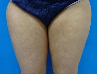 東京中央美容外科 郡山院(郡山下肢静脈瘤クリニック)の脂肪吸引の症例写真(ビフォー)