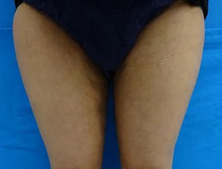 東京中央美容外科 郡山院(郡山下肢静脈瘤クリニック)の脂肪吸引の症例写真(アフター)