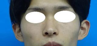 東京中央美容外科 郡山院(郡山下肢静脈瘤クリニック)の立ち耳修正・耳介形成の症例写真(ビフォー)