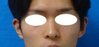 東京中央美容外科 郡山院(郡山下肢静脈瘤クリニック)の立ち耳修正・耳介形成の症例写真(アフター)