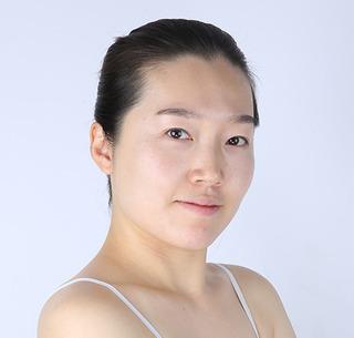 バノバギ整形外科の輪郭3点+脂肪移植の症例写真(ビフォー)