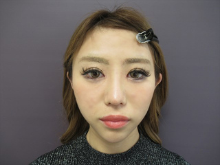 銀座TAクリニックのトータルビューティ施術(目・鼻・輪郭)の症例写真(アフター)