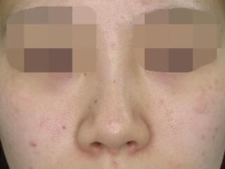 福岡TAクリニックの鼻尖縮小+鼻尖4Dノーズ+鼻翼縮小術(小鼻縮小)+鼻孔縁挙上の症例写真(ビフォー)