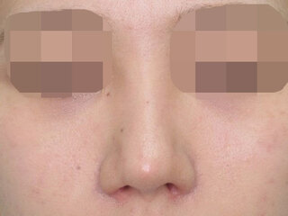 福岡TAクリニックの鼻尖縮小+鼻尖4Dノーズ+鼻翼縮小術(小鼻縮小)+鼻孔縁挙上の症例写真(アフター)