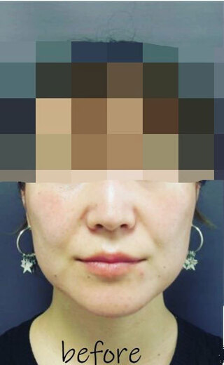 銀座TAクリニックのキツネライン(ハートプラン)の症例写真(ビフォー)