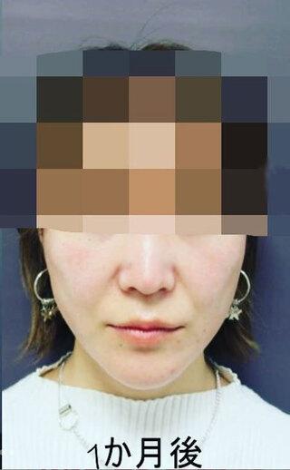銀座TAクリニックのキツネライン(ハートプラン)の症例写真(アフター)