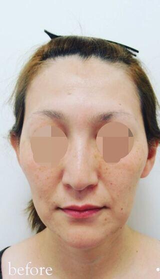 銀座TAクリニックのキツネライン(ダイヤプラン)の症例写真(ビフォー)
