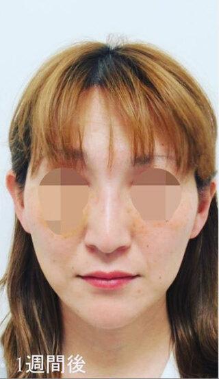 銀座TAクリニックのキツネライン(ダイヤプラン)の症例写真(アフター)