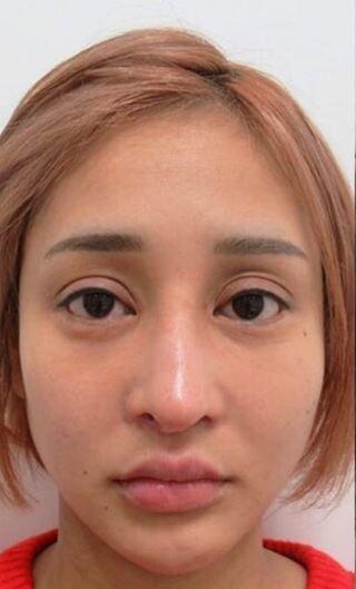 銀座TAクリニックのバッカルファット除去+ツヤ肌コラーゲンリフトの症例写真(ビフォー)
