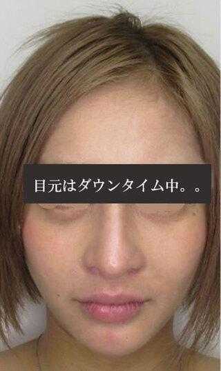 銀座TAクリニックのバッカルファット除去+ツヤ肌コラーゲンリフトの症例写真(アフター)