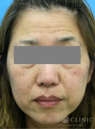 エースクリニックのHIFUでたるみ治療 「ウルセラ」の症例写真(ビフォー)