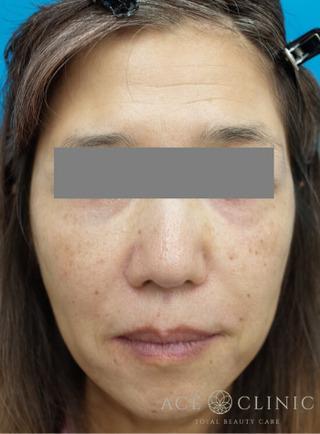 エースクリニックのHIFUでたるみ治療 「ウルセラ」の症例写真(アフター)