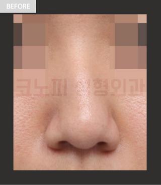 CONOPI (コノピ)整形外科の曲がった鼻(鷲鼻)の症例写真(ビフォー)