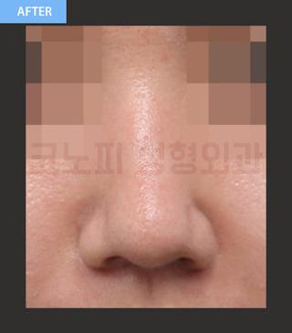 CONOPI (コノピ)整形外科の曲がった鼻(鷲鼻)の症例写真(アフター)