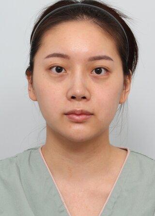 バノバギ整形外科の【症例】輪郭3点の症例写真(ビフォー)