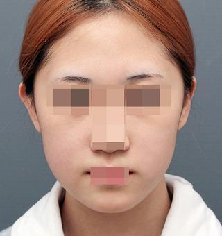 ITEM美容(整形)外科の鼻整形/目整形の症例写真(ビフォー)