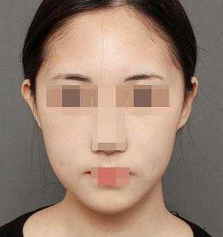 ITEM美容(整形)外科の鼻整形/目整形の症例写真(アフター)