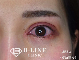 B-LINE CLINICの左眼瞼下垂手術+目頭切開術  1週間後(抜糸直後) の症例写真(アフター)
