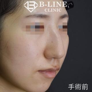 B-LINE CLINICのわし鼻修正手術 1ヵ月後の症例写真(ビフォー)