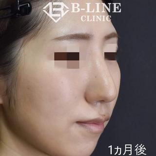 B-LINE CLINICのわし鼻修正手術 1ヵ月後の症例写真(アフター)