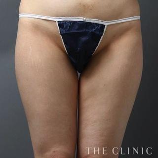 THE CLINIC(ザ・クリニック)東京院の太もものベイザー脂肪吸引の症例写真(ビフォー)