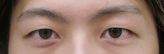 十仁美容整形の二重埋没法(3針)の症例写真(ビフォー)