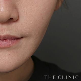 THE CLINIC(ザ・クリニック)名古屋院の顔(頬・顎)のベイザー脂肪吸引の症例写真(アフター)