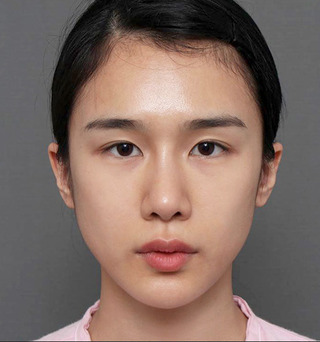 ITEM美容(整形)外科の鼻の再手術/脂肪移植の症例写真(ビフォー)