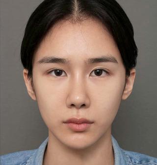 ITEM美容(整形)外科の鼻の再手術/脂肪移植の症例写真(アフター)