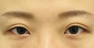 東京イセアクリニック銀座院の埋没法ベーシックの症例写真(アフター)