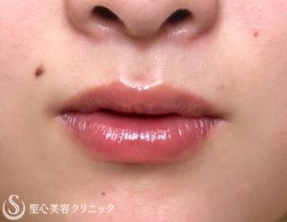 聖心美容クリニック東京院の【20代女性・唇も可愛く】スマイルリップ(施術直後)の症例写真(ビフォー)
