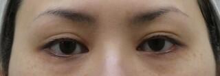 十仁美容整形の二重埋没法(2針)+一部切開+脂肪除去法、目頭切開の症例写真(アフター)