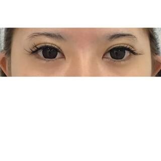 東郷美容形成外科 福岡の左右差の調整 二重まぶた 埋没法の症例写真(アフター)