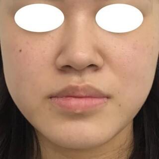 東郷美容形成外科 福岡の下唇の縮小の症例写真(ビフォー)