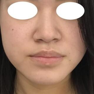 東郷美容形成外科 福岡の下唇の縮小の症例写真(アフター)