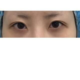 東郷美容形成外科 福岡の二重整形 切開法の症例写真(ビフォー)