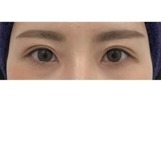 東郷美容形成外科 福岡の二重整形 切開法の症例写真(アフター)