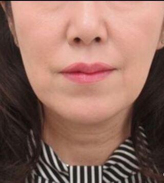 銀座TAクリニックのツヤ肌コラーゲンリフト+バッカルファット除去の症例写真(ビフォー)
