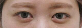 十仁美容整形の二重埋没法(2針)の症例写真(ビフォー)