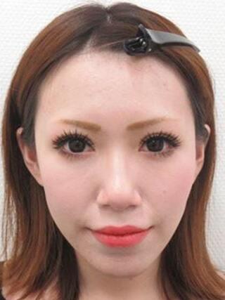 大阪TAクリニックのトータルビューティモニター(目・鼻・輪郭・口元)の症例写真(ビフォー)