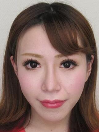 大阪TAクリニックのトータルビューティモニター(目・鼻・輪郭・口元)の症例写真(アフター)