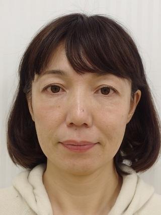 銀座長澤クリニックの糸のリフトアップ治療の症例写真(ビフォー)