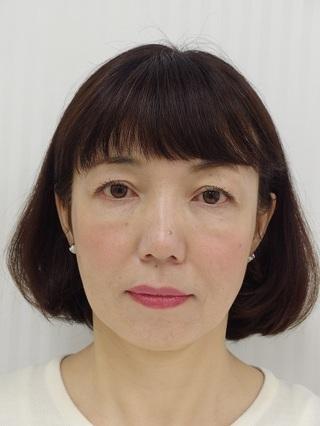 銀座長澤クリニックの糸のリフトアップ治療の症例写真(アフター)