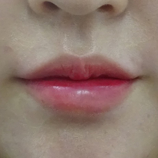 東京中央美容外科 仙台院の唇のヒアルロン酸注射の症例写真(アフター)
