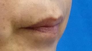 東京中央美容外科 仙台院の唇のヒアルロン酸注射の症例写真(ビフォー)